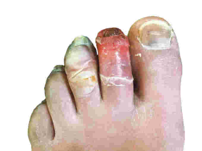 Wikipedia human toes frostbite do not use without CC license